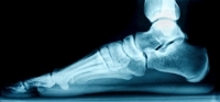Can Flat Feet Cause Foot Pain?