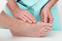 Is Surgery Right for My Bunion?